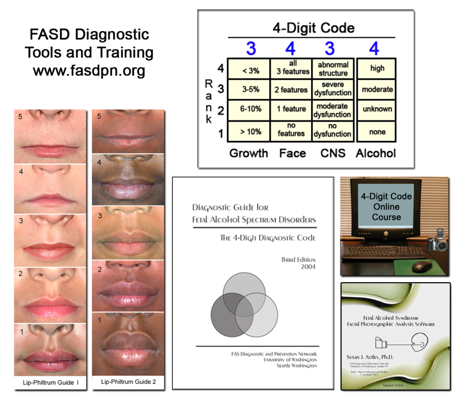 FASD diagnostic tools and training